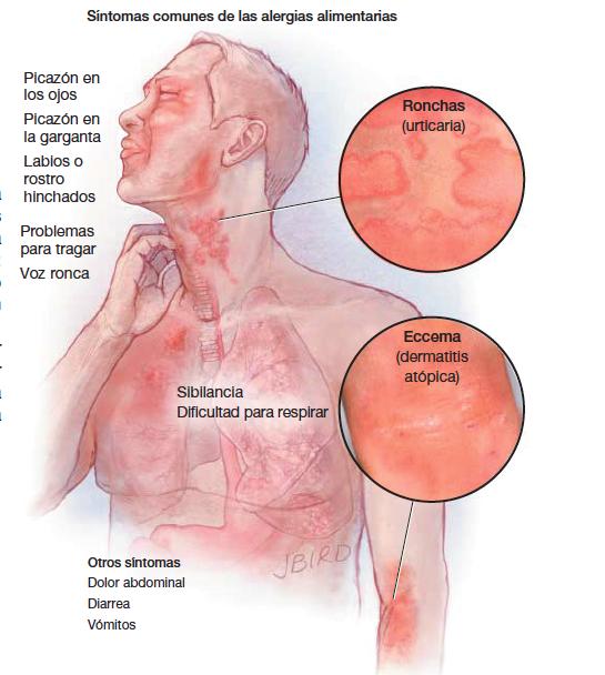 sintomas de alergia alimentaria en adultos