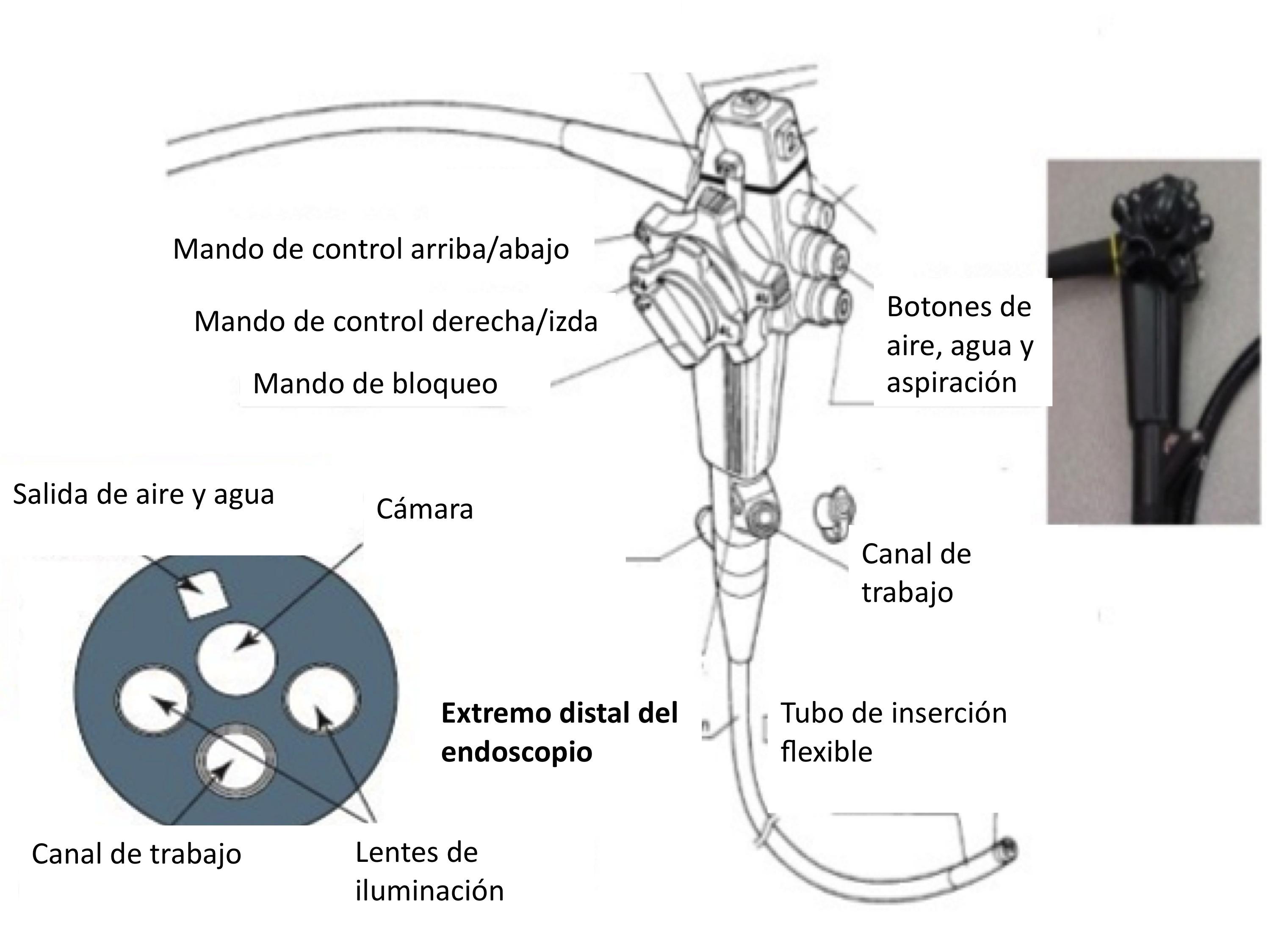 que organos se ven con una endoscopia